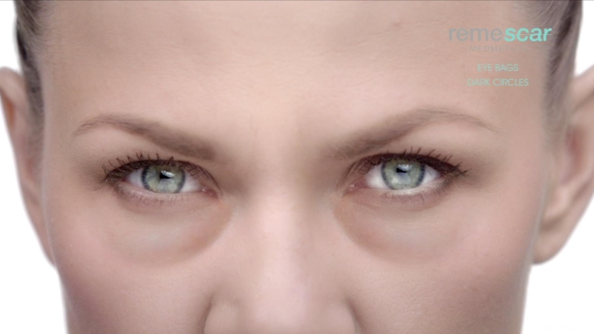 Remescar Eyebags 1